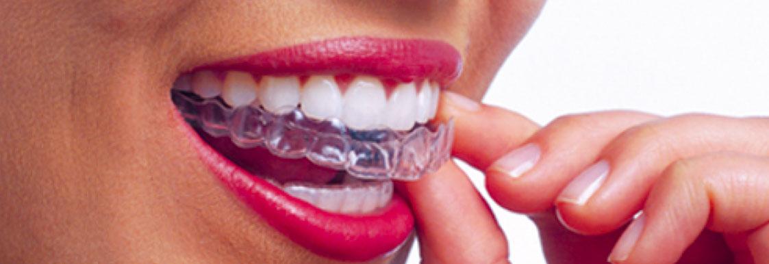 smysecret. Ortodoncia transparente digital en madrid.