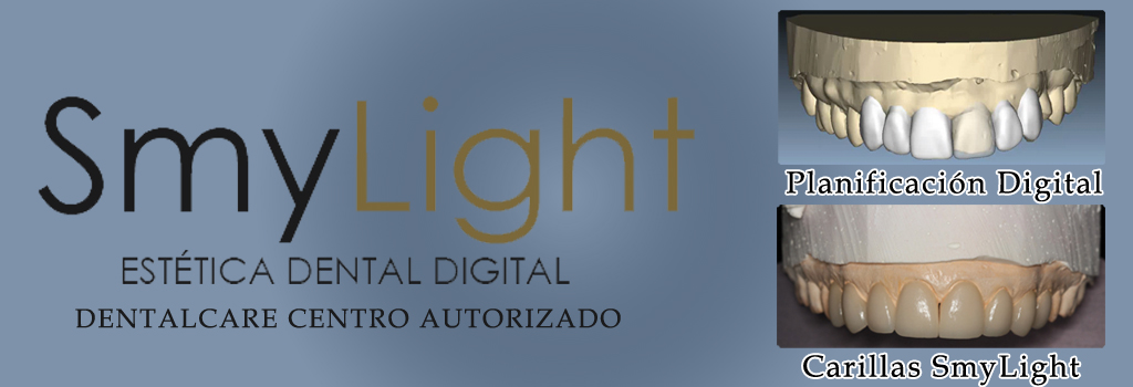 carillas dentales smylight