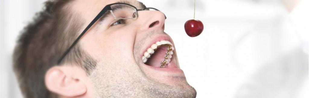 Ortodoncia-Lingual-Incognito