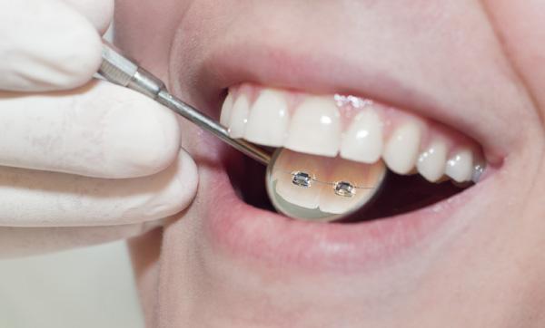 ortodoncia-lingual-invisible-2