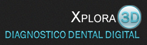 Xplora-3d
