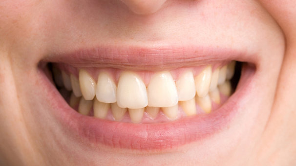 dientes-amarillos-causas-portada
