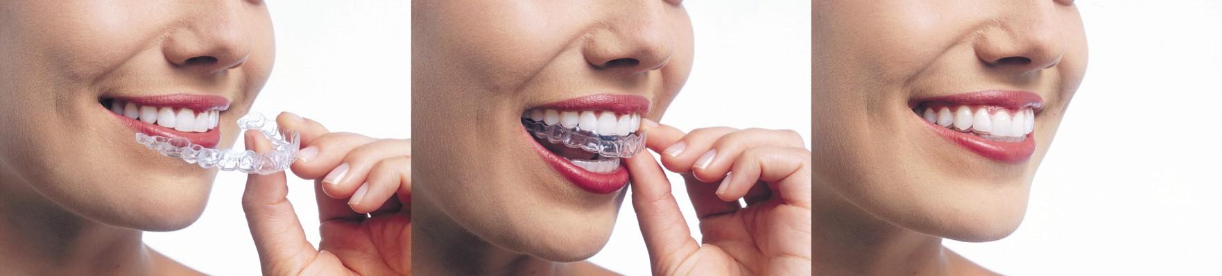 Invasiling Ortodoncia invisible en Dentalcare Clínicas
