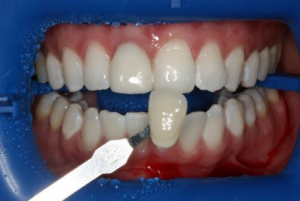 Blanqueamiento Dental Zoom