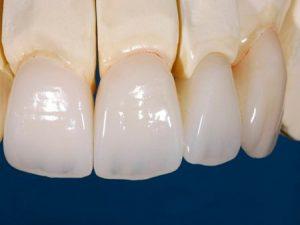 Sonrisa con carillas dentales