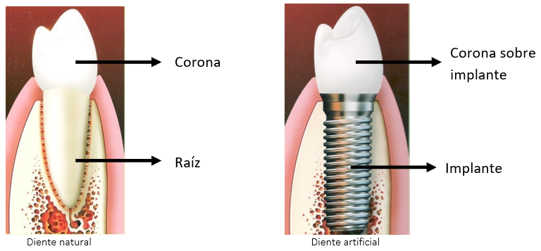 Implantes dentales y corona dental