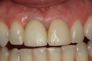 Resultado de implantes dentales