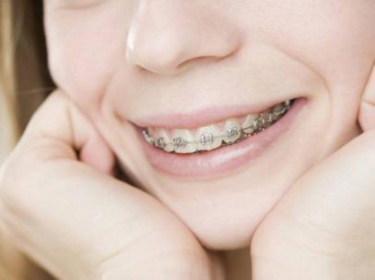 ortodoncia-adolescentes