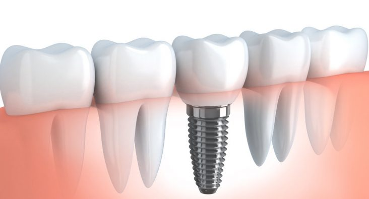 dis-implanti-dental-implant-thegem-blog-default