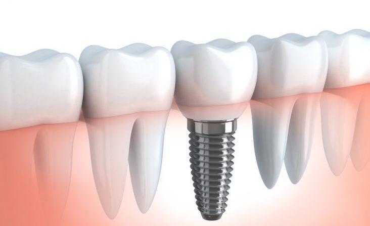 dis-implanti-dental-implant-thegem-blog-default