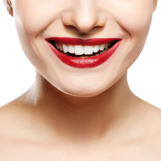 sonrisa-mujer-blanqueamiento-dental
